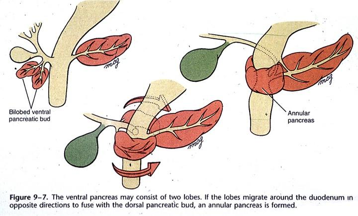 Exocrine Pancreas 1 Pathoma