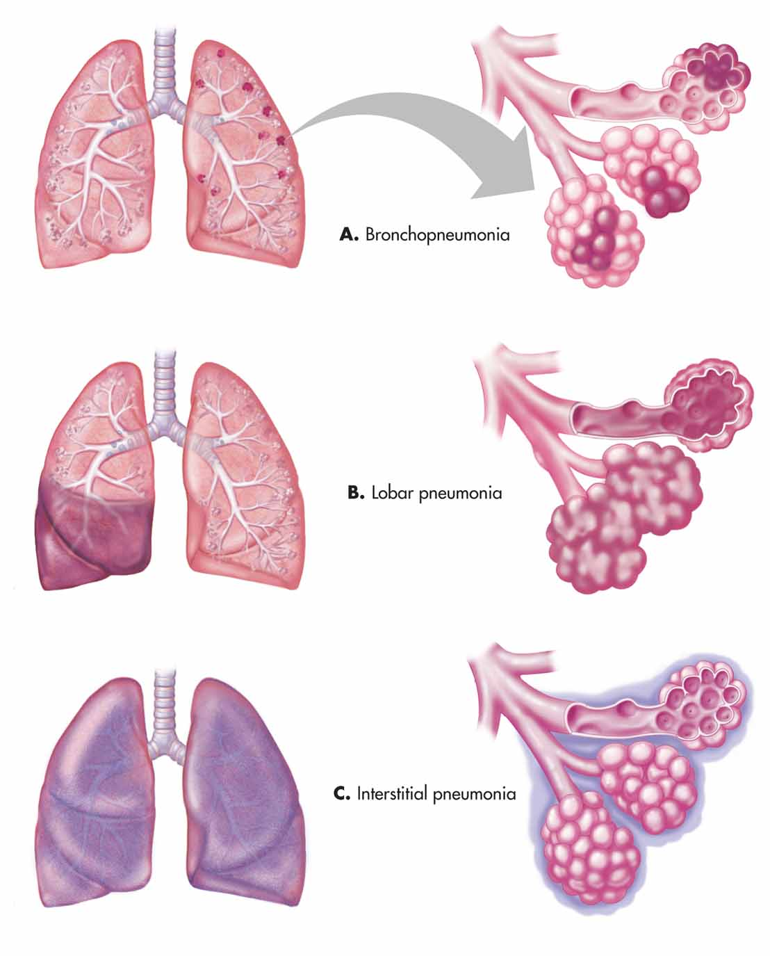 Pulmonary Infections- Pathoma